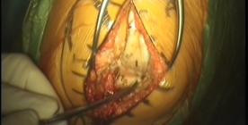 Protesi bimonocompartimentale di ginocchio femoro-tibiale mediale e femoro-rotulea